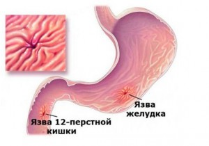 Picture symptoms of peptic ulcer 12-duodenal ulcer